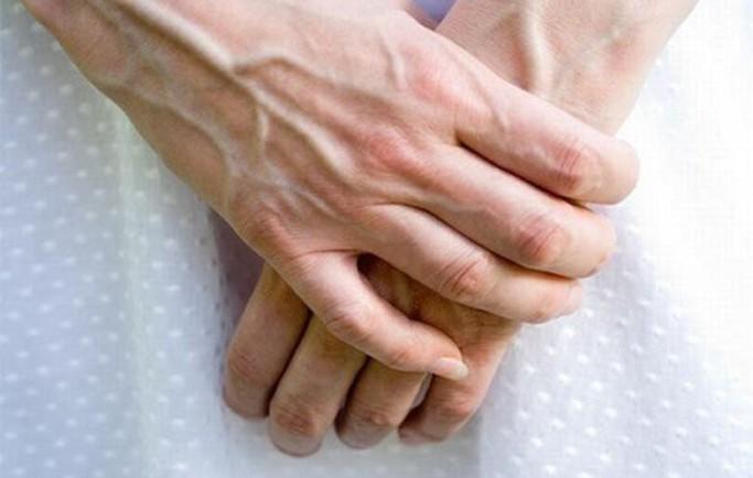 Bệnh suy giãn tĩnh mạch tay là gì?