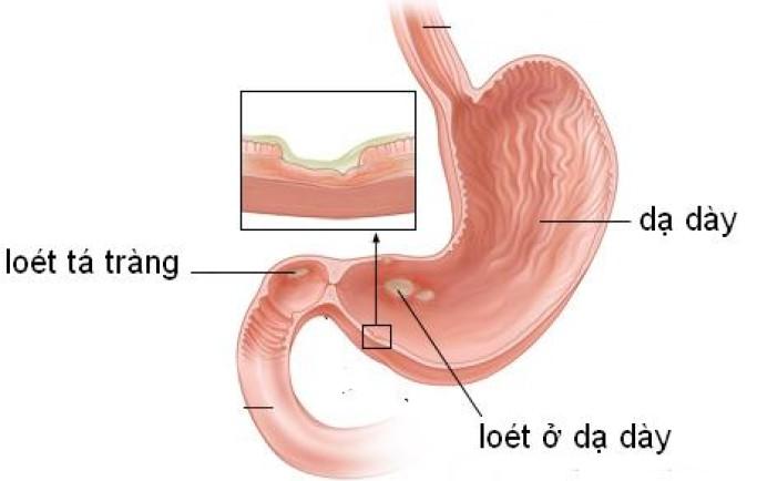 Cách chữa bệnh đau dạ dày và triệu chứng của bệnh
