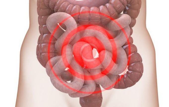 Hội chứng ruột kích có biểu hiện như thế nào?