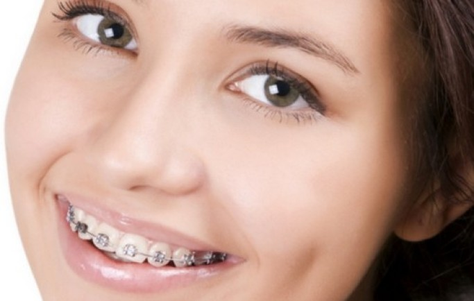 Hỏi đáp trồng răng sứ liền cả thân và chân răng ổn không?