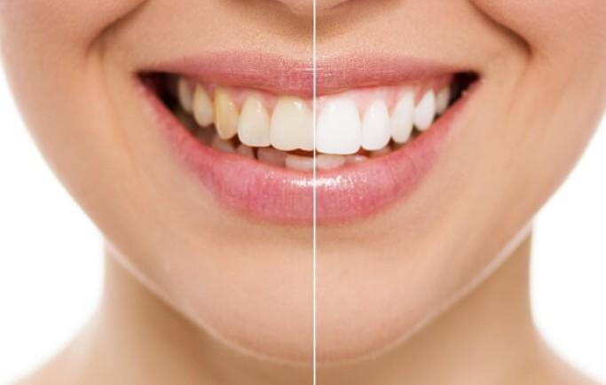 Kiến thức cần rõ về các dòng răng sứ mà bạn nên biết