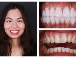 Phục hình răng sứ nguyên liệu nào đẹp nhất hiện nay?