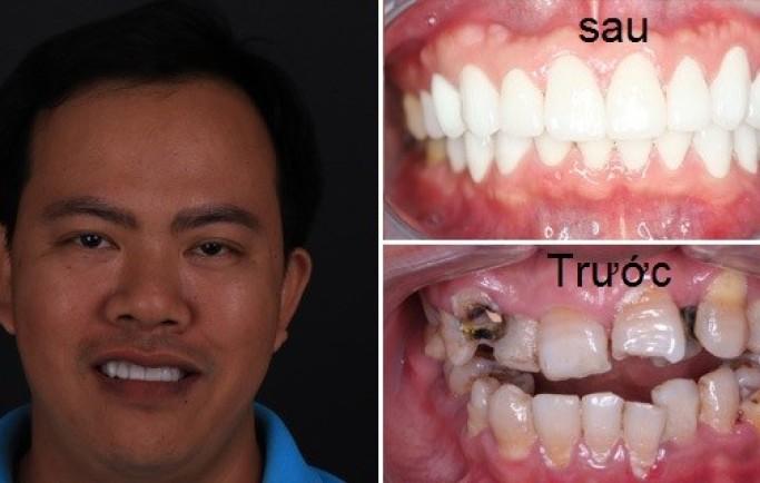 Phương pháp cắm ghép răng cửa và một số chia sẻ cần biết
