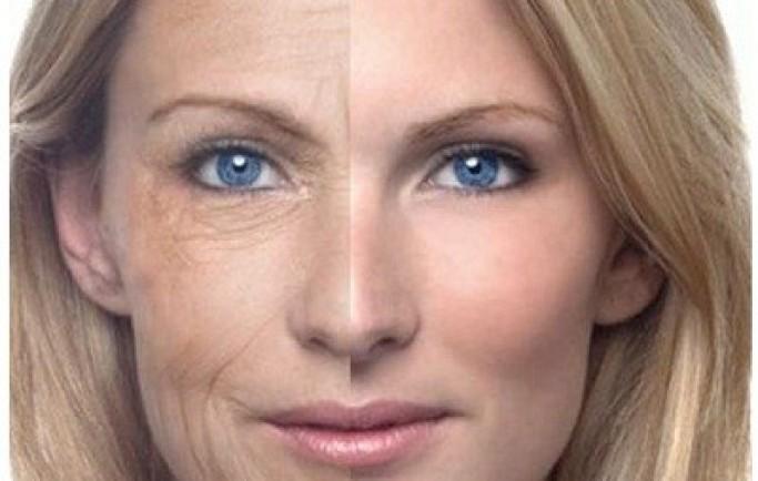 Phương pháp trị nám da mặt bằng các nguyên liệu từ thiên nhiên