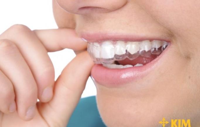Sau khi niềng răng có đẹp hơn hay không?