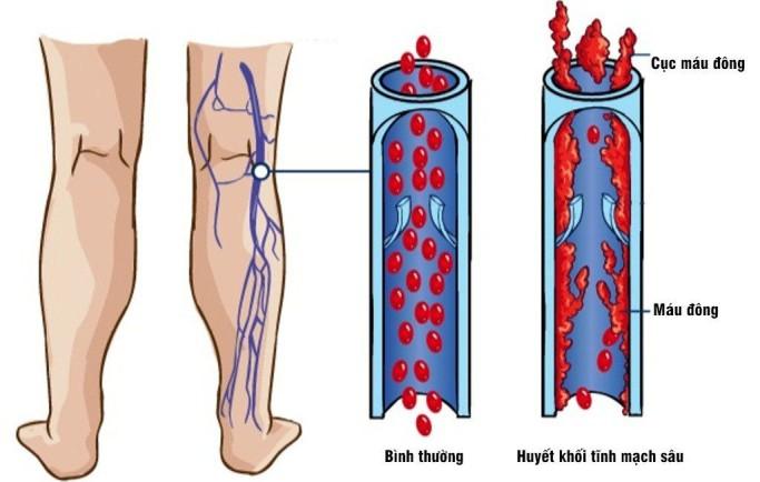 Suy giãn tĩnh mạch huyết khối - biến chứng nguy hiểm cần phòng ngừa