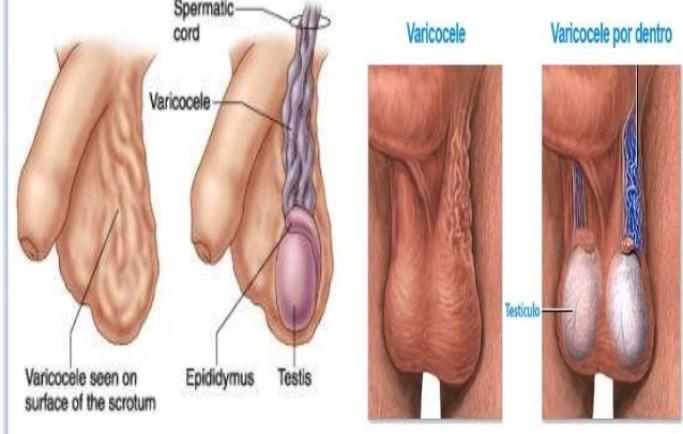 Suy giãn tĩnh mạch tinh hoàn gây vô sinh ở nam giới