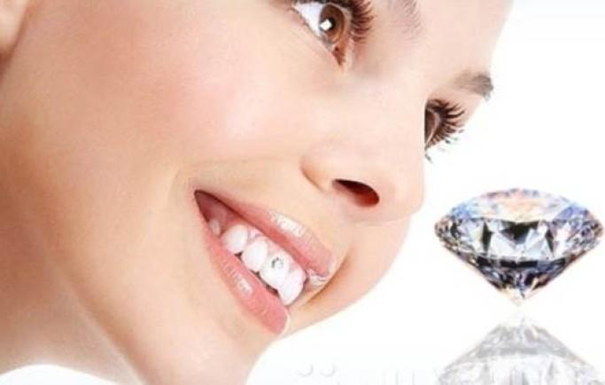 Thận trọng  do những cách tẩy trắng răng ở nhà