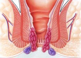 Bệnh trĩ có tái phát khi đã phẫu thuật rồi không?