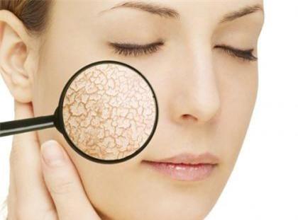 Nguyên nhân gây nám và ăn gì để trị nám da hiệu quả