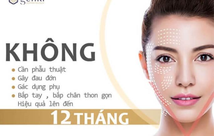 Công nghệ căng da mặt nào hiệu quả nhất hiện nay