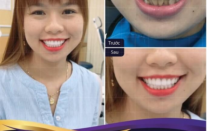 Khác biệt giữa hai cách thức cấy ghép răng Implant và cầu răng