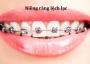 Niềng răng có lâu không và có đau nhiều không