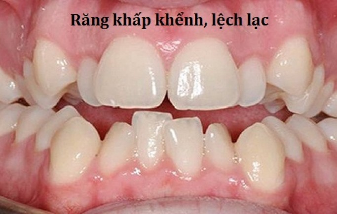 Niềng răng mắc cài sứ hay kim loại tốt