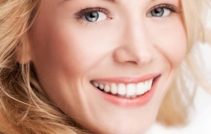 Răng sứ lava plus là dòng răng sứ cao cấp